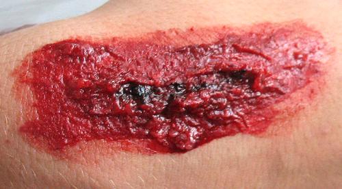 herida artificial
